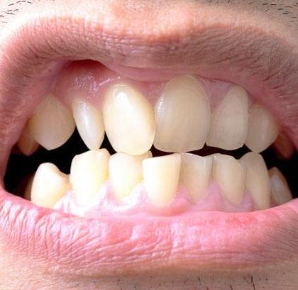 Несовершенная форма зубов