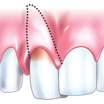 Смещение и расшатывание зубов