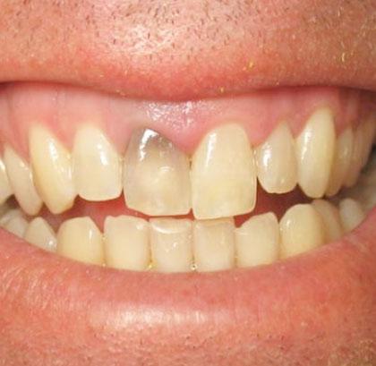 Потемнение зуба