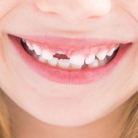 Осмотр зачатков зубов