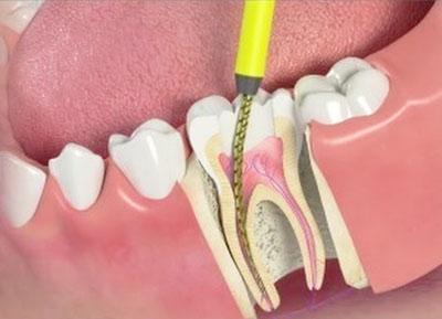 Лечение пульпита и периодонтита молочных зубов