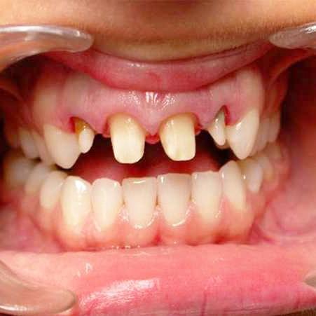 Сильных разрушениях зубов