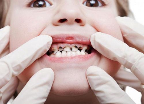Лечение кариеса молочного зуба