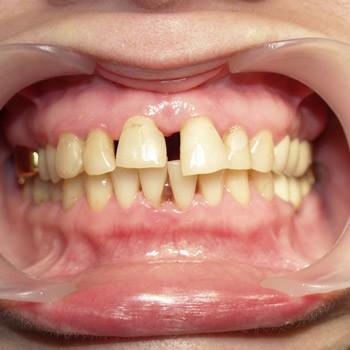 Снижает подвиджость зубов