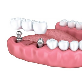 Протезирование при большом количестве отсутствующих зубов