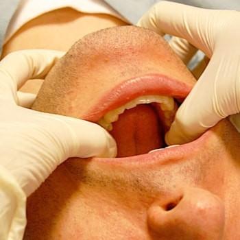 Травма челюсти с потерей объема кости