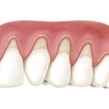 Зубы объединяются в блок