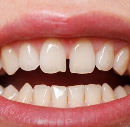 Микросколы на зубов