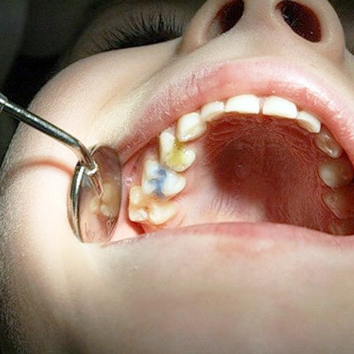 Перелечивание зуба