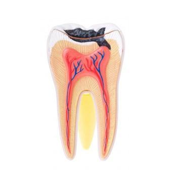 Зуб поддается разрушению