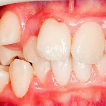 Коррекция зубов вне линии ряда