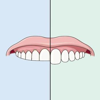 Зуб поддается стиранию
