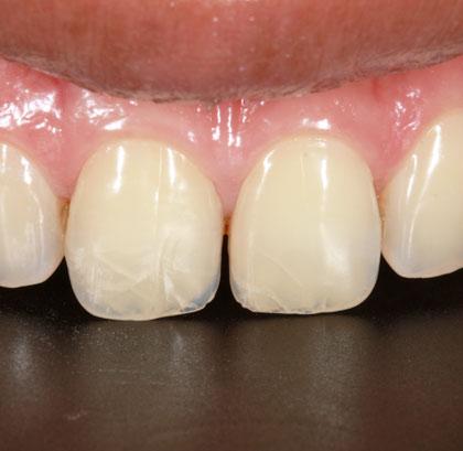 Увидеть микротрещины на зубной эмали