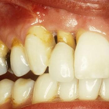 Устраняется патологическая подвижность зубов