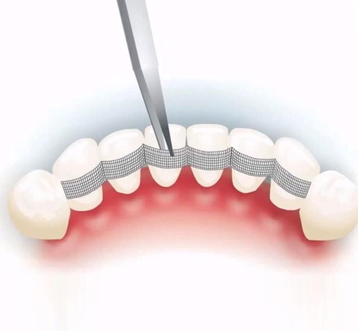Необходимости шинирования зубов