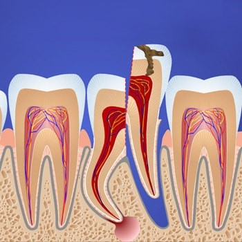 Травматичное удаление зуба с повреждением окружающей кости