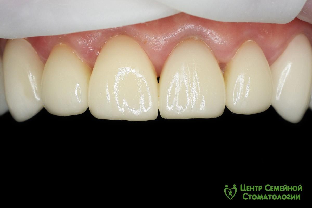 Состояние зуба и корня зуба