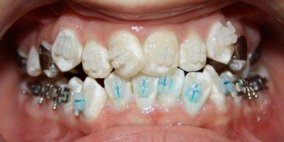Расширение зубного c теснsv положении