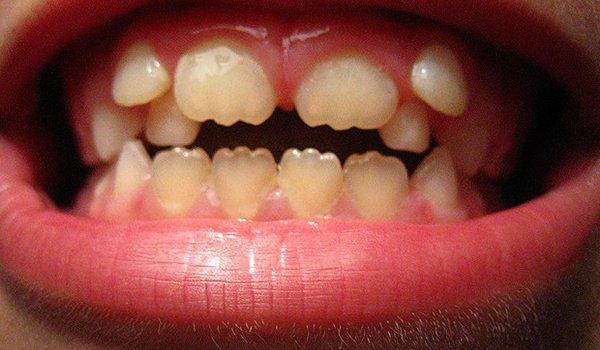 Скрученное расположение зуба