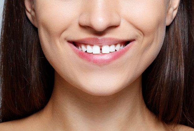 Зубные щели