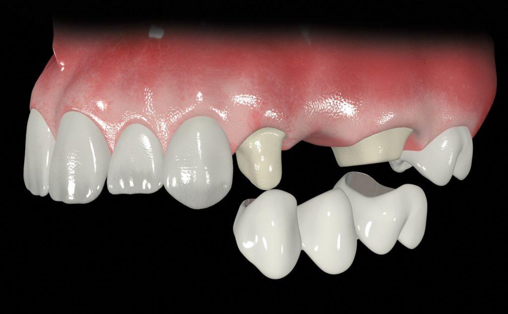 Mostovidnye nesemnye zubnye protezy