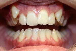 Смещение зубов