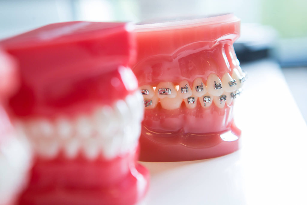 Freeman Orthodontics Braces Treatment 51