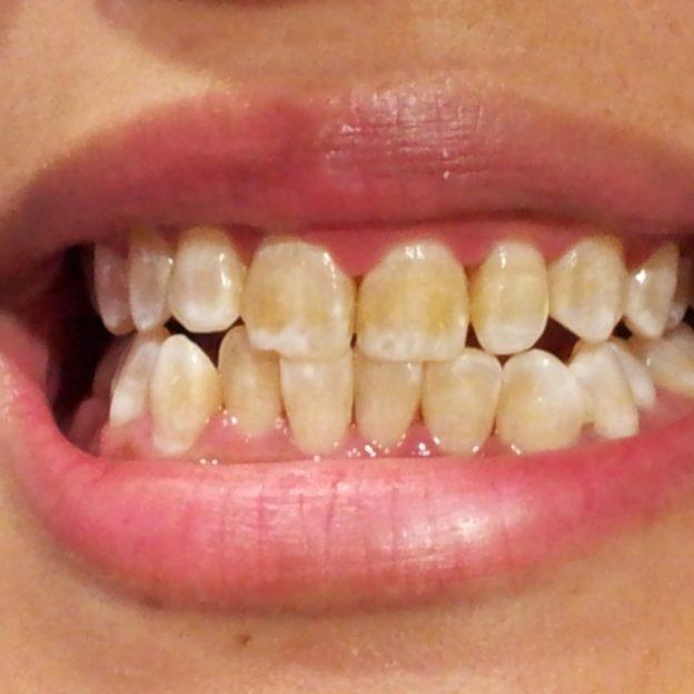 Осветляет зубы, которые с рождения не были белыми