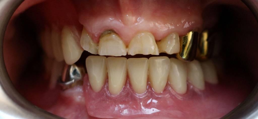 Профилактика стираемости зубов